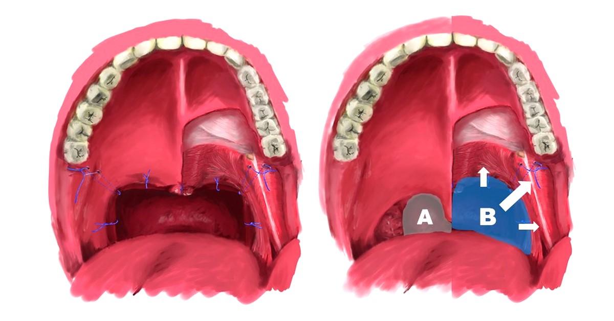 手術 扁桃 声 腺